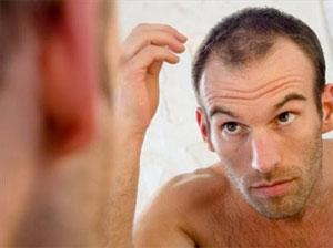 Prevenir la caída del cabello